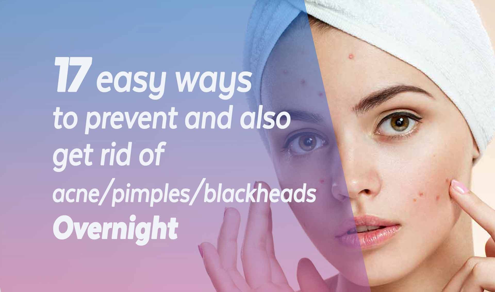 Get Rid of Ance pimples and blackheads